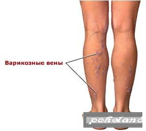 Как лечить варикоз нижних конечностей