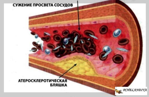 чистка артерий от холестерина по немецкому рецепту