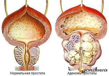 Массаж от простатита не лечить