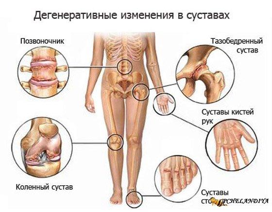 Лечение народными средствами ревматоидного артрита