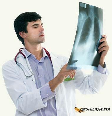 Острый бронхит: лечение 97