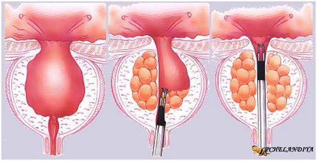 Бусерелин лонг отзывы простата